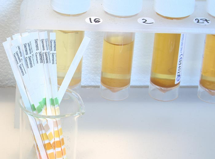 Fake urine being used to tamper with urine drug testing? It sounds unlikely, but it does happen and is one of the reasons Integrity Sampling recommends saliva drug testing.