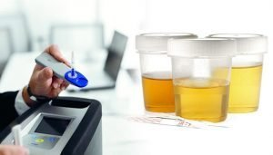 Saliva drug testing versus urine drug testing for your WA workplace? The choice is clear.